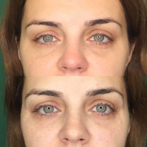 Коррекция носослезной борозды/переорбитальная зона (глаза)