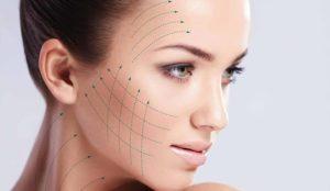 3D Face Lifting