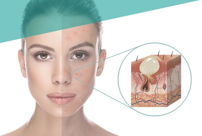 Skin treatment (acne)