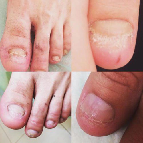 Лечение грибка ногтей при помощи лазера Кальянова Виктория Дезидеровна