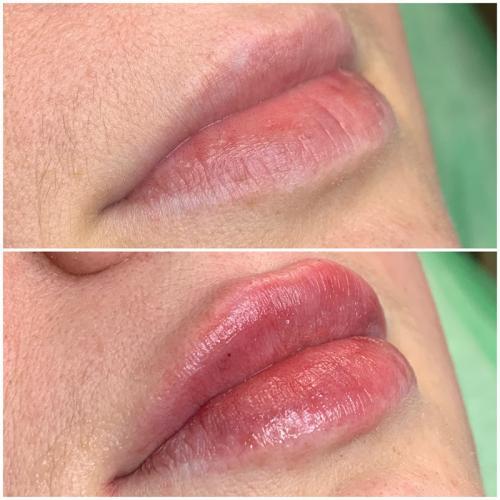 Увеличение губ — Горденко Амалия Самвеловна