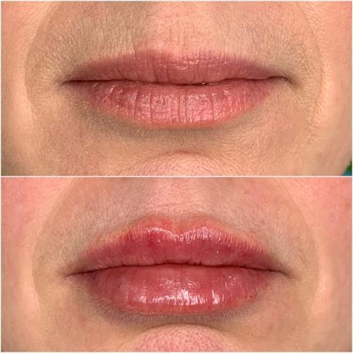 Увеличение губ — Оводенко Наталья Вячеславовна