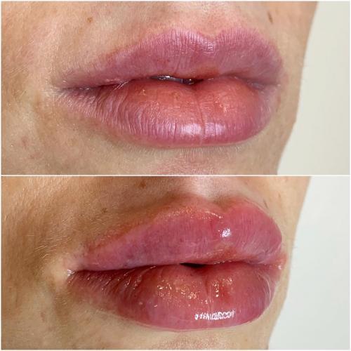 Увеличение губ — Погребняк Елена Васильевна