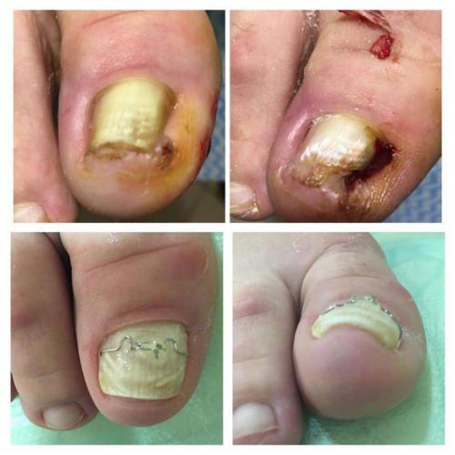 Лечение вросшего ногтя с помощью скобы 3-ТО — Марчук Евгения Анатольевна