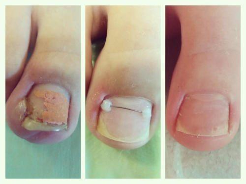 Лечение вросшего ногтя с помощью титановой нити — Сажай Наталья Федоровна
