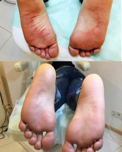 Лечение грибковых стоп — Марчук Евгения Анатольевна