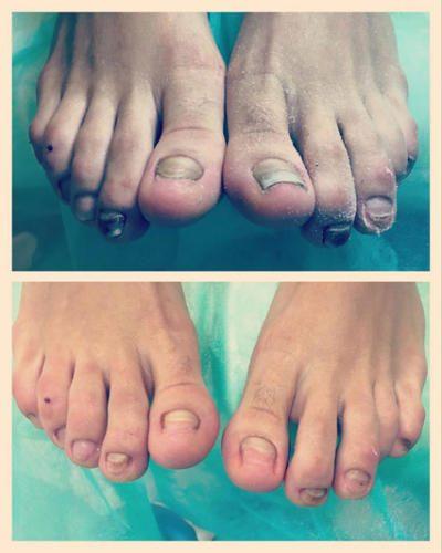 Обработка ногтей пораженных грибковой инфекцией — Марчук Евгения Анатольевна